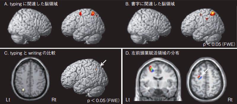 タイピングと書字中枢に関連した脳の領域