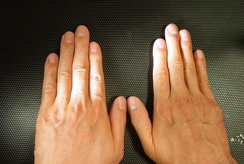 両手の人差し指と薬指の長さの比較